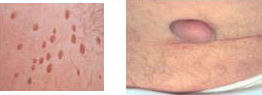Skin tag and polyp removal